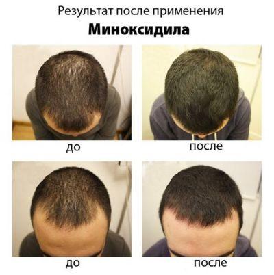Миноксидил Minoxidil kirkland до и после