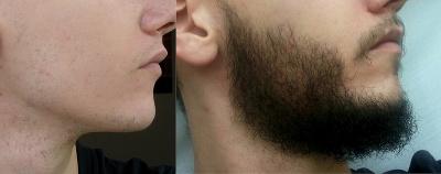 Миноксидил kirkland борода