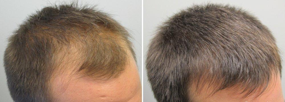 Жожоба в маску для волос