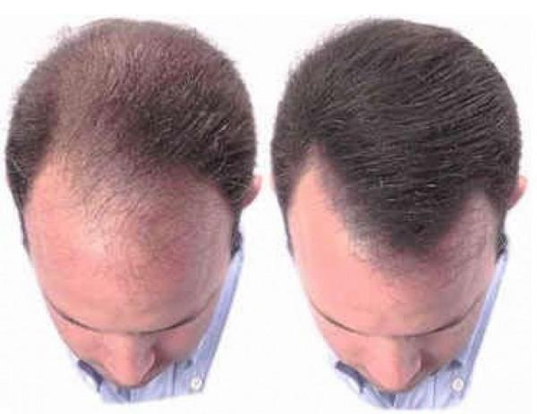 Как отрастить волосы мужчине при облысении