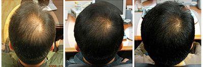 Миноксидил Minoxidil kirkland 3 месяца результаты